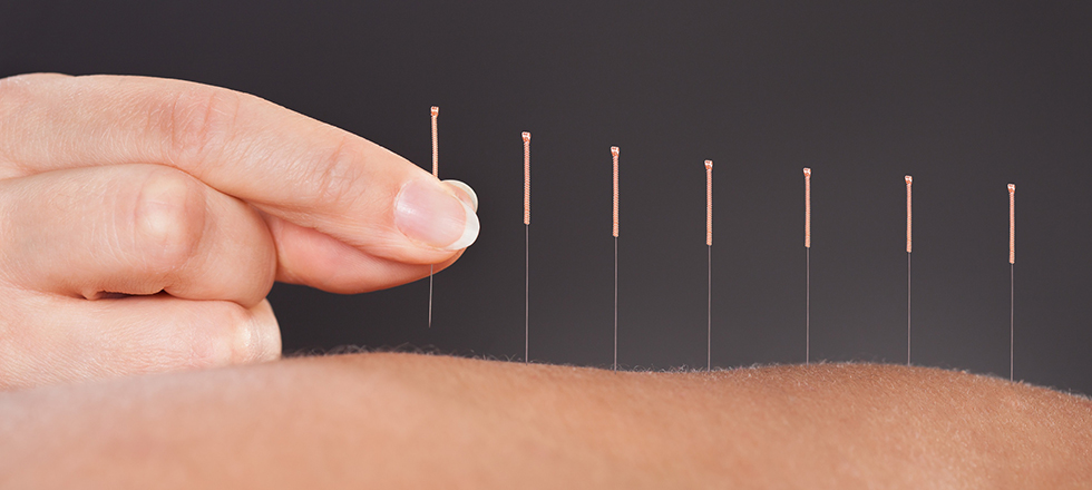Medical-Acupuncture